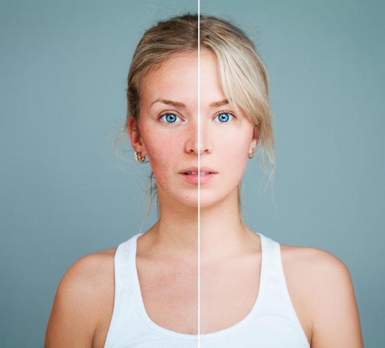 Before and after edited photos of a young woman with acne.