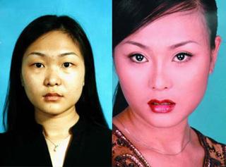 Hao Lulu sebelum dioperasi (kiri) dan sesudah dioperasi plastik wajahnya (kanan). Lebih cantik atau sama saja atau malah lebih jelek?