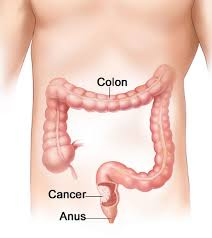 Beware of Colon Cancer Symptoms