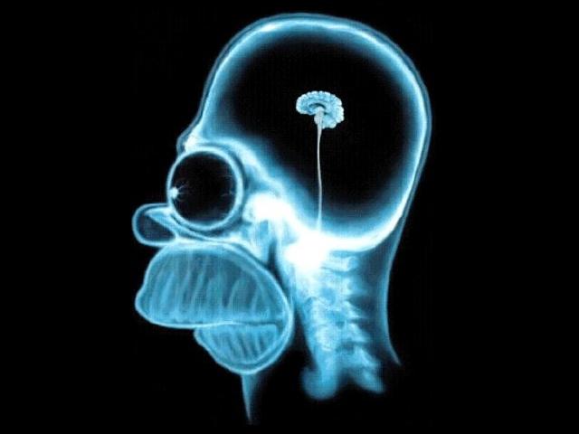 homer brain2