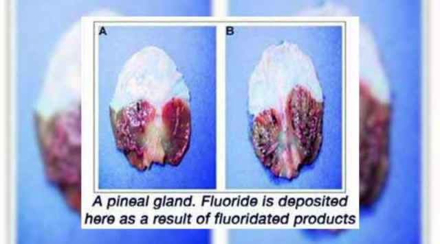 5 Calcified Pineal Gland