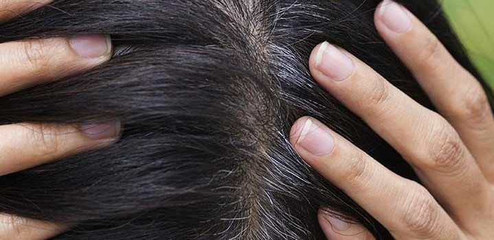 Why Does Hair Turn Gray?