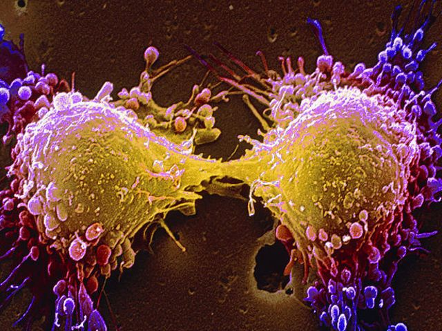 Cancer cells dividing