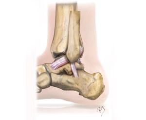 Ligaments touchés