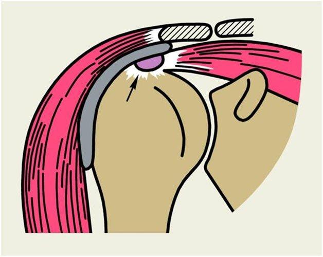 deteriorarea manșetei de rotație a articulației umărului drept autocorectarea bolilor articulațiilor și coloanei vertebrale