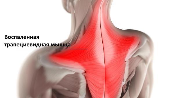 Cel mai adesea, mușchiul trapezoidal suferă