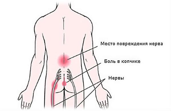 middokalm de la varicoseza