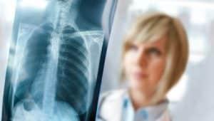 radiologie-colonne-vertebrale