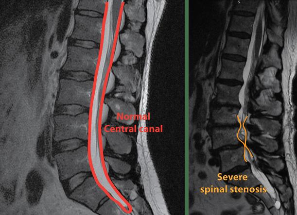 MRI Step 1