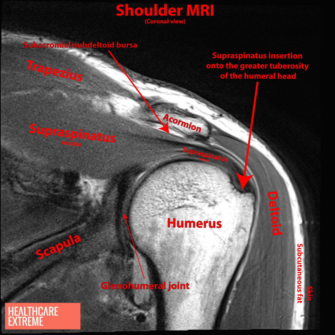 Shock And Suspense With Shoulder Subacromial Impingement Syndrome ...