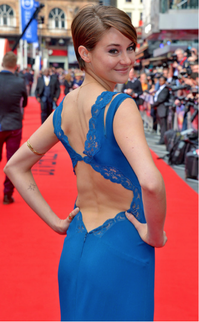 Actress Shailene Woodley Shines With Scoliosis