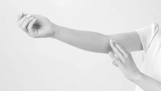 女性の腕 湿疹