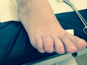 dig 4# voet re