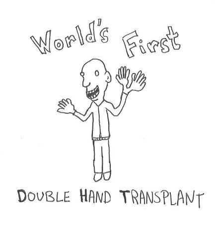 hand-transplant1