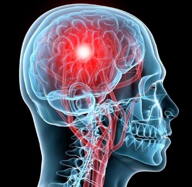 Concussion Research, Management and Evolution of Treatment — Sports Medicine Weekly