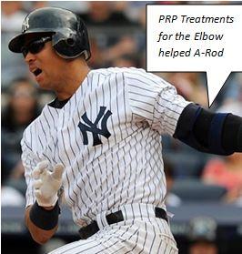 prp-treatments-help