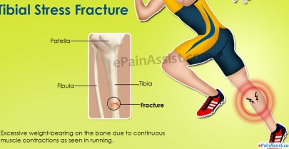 Stress Fractures Chicago Causes Symptoms
