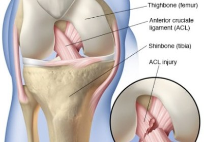 Dealing with Anterior Cruciate Ligament Injury