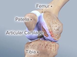 New Innovations in Cartilage Restoration