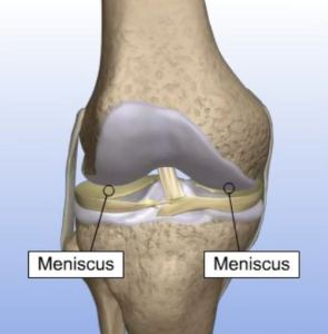 What is meniscal transplant surgery?