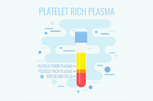 Use of Platelet Rich Plasma for Elbow Injuries; Chicago White Sox Throwing Injuries