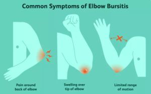 Elbow (Olecranon) Bursitis: Causes, Signs and Treatments