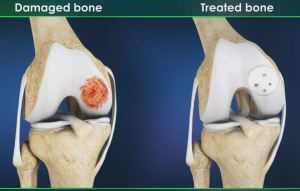 Understanding Allograft Cartilage Transplant Procedure