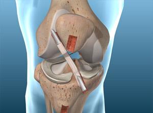 Understanding Torn ACL – Bone-Patellar Tendon-Bone Graft Procedure