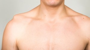 Shoulder Separation Causes, Symptoms and Treatments