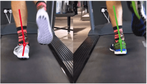Risky Movement Patterns After ACL Surgery–Implications for Long-term Knee Health