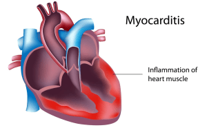 What's the link between myocarditis and COVID-19? A look at the rare heart condition has the college football season in jeopardy.