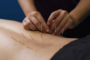Dry Needling and Blood Flow Restriction with Athletico Physical Therapy