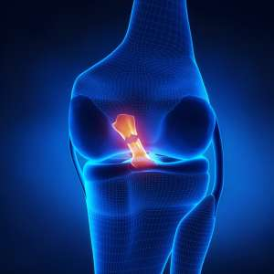 Torn ACL – Quadriceps Tendon Graft
