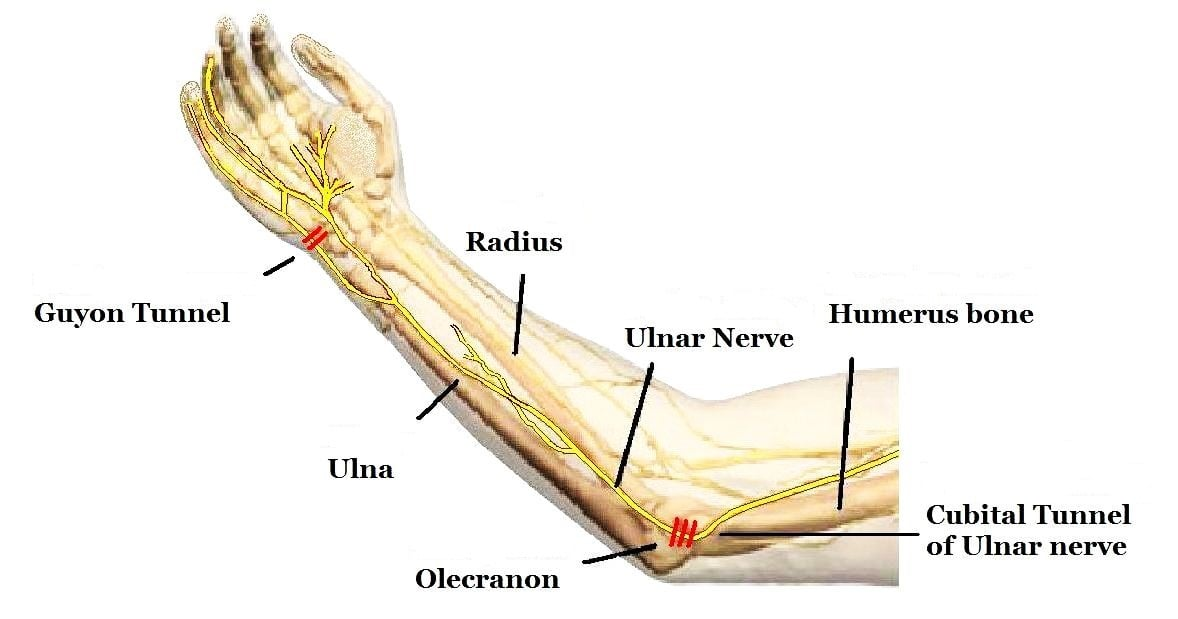 Cubital Tunnel Syndrome Sports Rehab Wellness