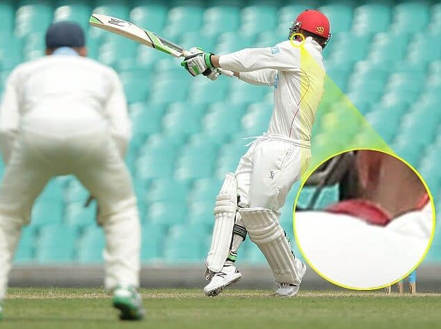 Phil Hughes hit by Sean Abbott