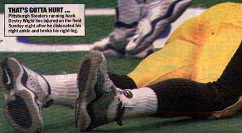 Destiny Wright Leg Injury