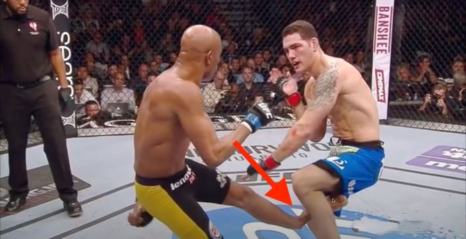 Worst UFC Injuries Ever That Are Disgusting