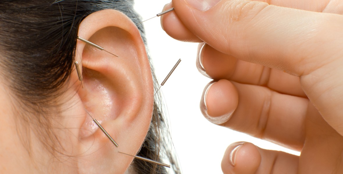Image of acupuncturist placing acupuncture needles in woman's ear for auriculotherapy