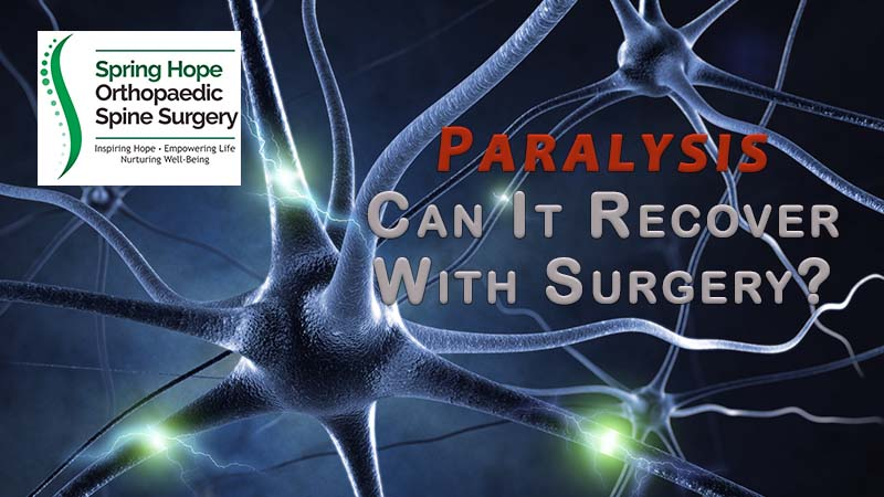 Paralysis | Can It Recover with Surgery?
