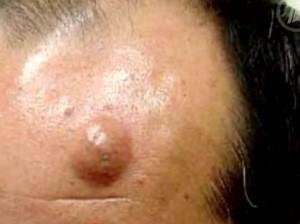Липомы - жировики на теле: причины, фото, симптомы ...
