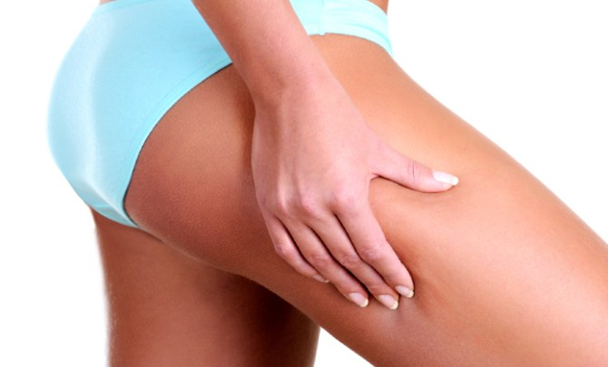 Can exercise rid cellulite?