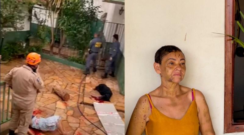 Vídeo mostra ataque de rottweilers contra cuidadora de 53 anos;  'estou viva mesmo, Deus? Disse ela