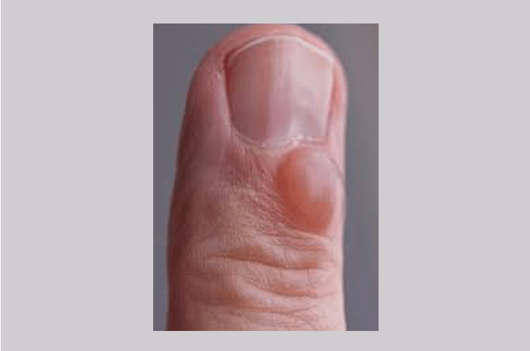 fingernails a clue to your health