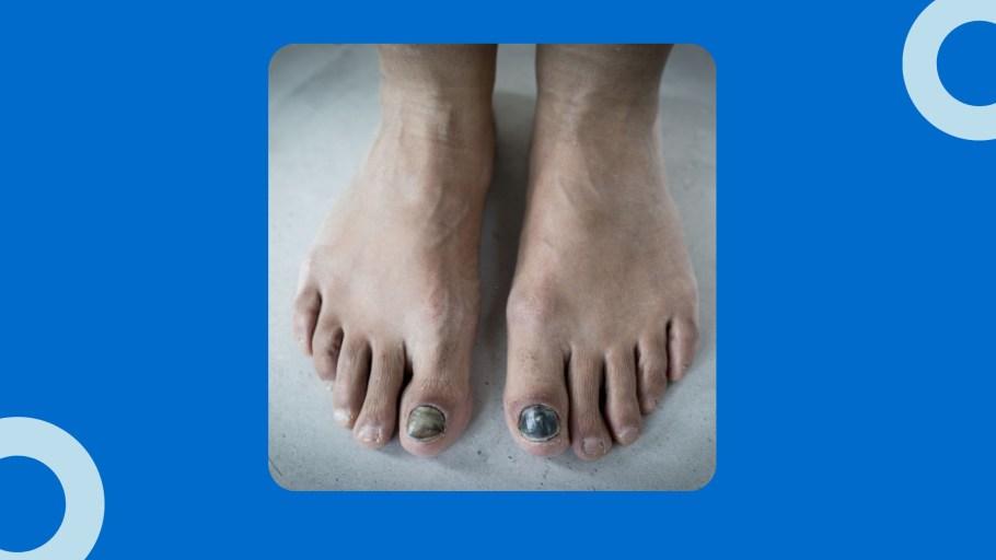 Vicks VapoRub For Toenail Fungus Treatment
