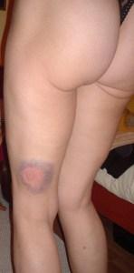 bruise 2