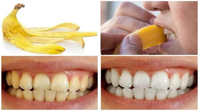 Trị răng bị đen tại nhà bằng vỏ chuối cũng rất hiệu quả