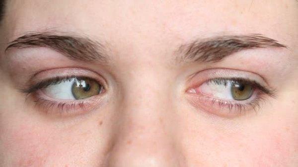 Глаза смотрят в разные стороны Стоковый видеоролик
