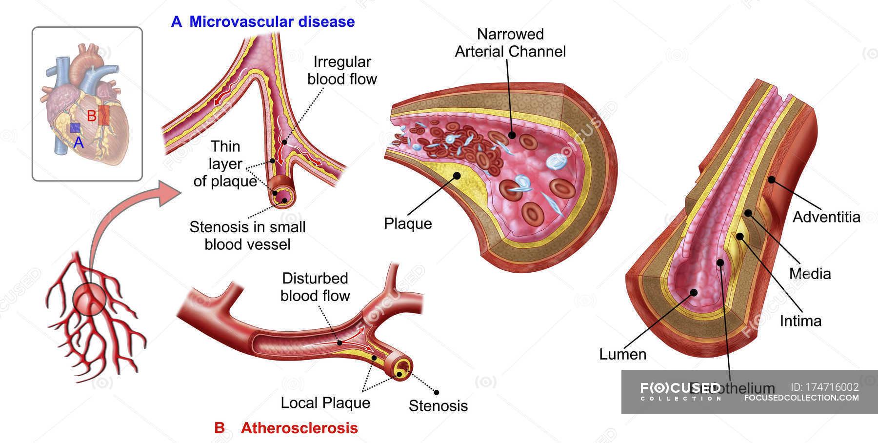 Ilustracoes Medicas Da Anatomia Dos Vasos Sanguineos Com