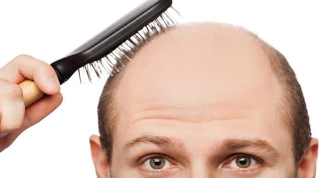 Image result for Hair Loss Growth