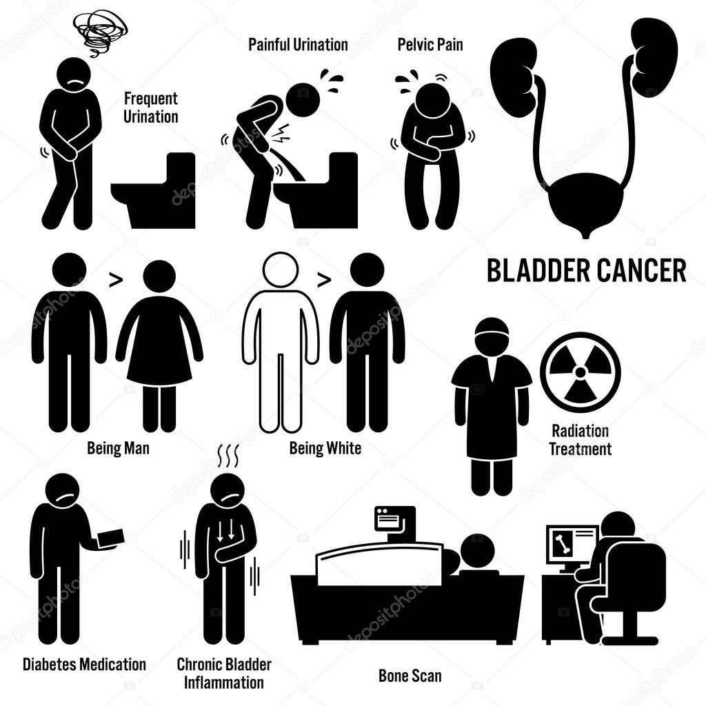 Bladder Cancer Symptoms Causes Risk Factors Diagnosis